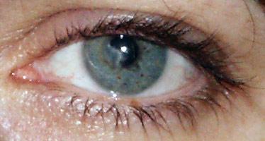 litteken in oog door herpes infectie